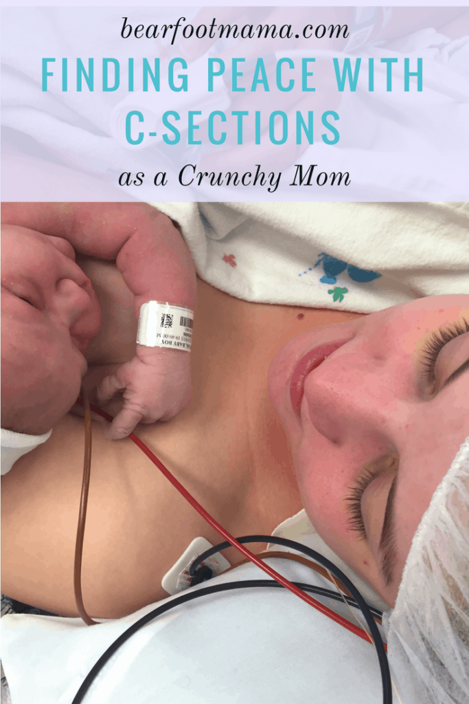 Finding Peace with C-Sections as a Crunchy Mom. Heal you emotional traumas and learn to love your Gentle Cesarean Section. C-Section recovery tips.